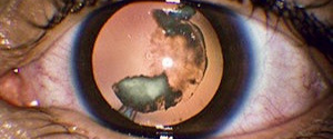Types of Cataracts